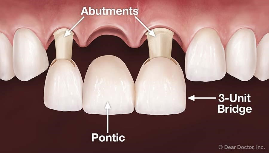 Dental Bridges In Rockledge Fl Serenity Family Dentistry